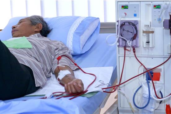 14 Efek Samping Cuci Darah Ginjal Bagi Kesehatan