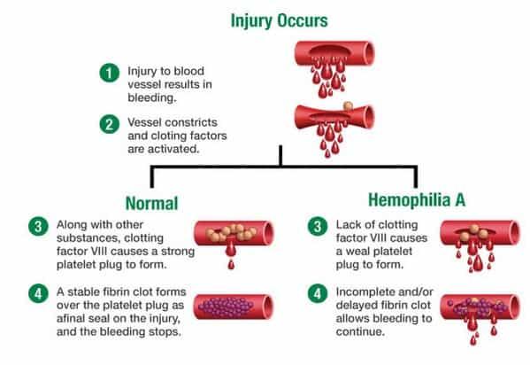 Gejala Hemofilia
