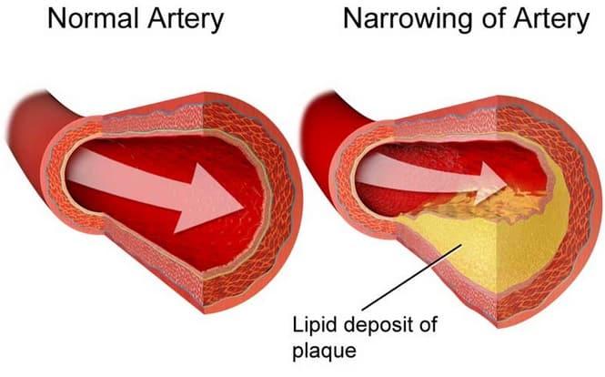 Perbedaan Kolesterol dan Trigliserida
