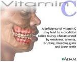 kurang vitamin c