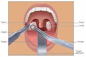 operasi amandel