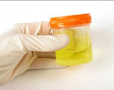 29 Penyebab Sering Buang Air Kecil dan Diagnosisnya