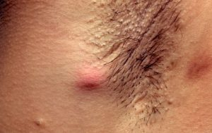 Ciri-ciri Bisul - Hidradenitis suppurativa