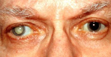 Penyebab Katarak Mata Orang tua dan Muda
