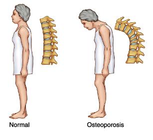 10 Penyebab Osteoporosis pada Wanita dan Lansia