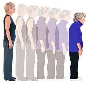 16 Cara Mencegah Osteoporosis Sejak Dini