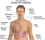 gejala HIV AIDS