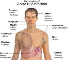 22 Gejala HIV AIDS Tahap Awal, Lanjut dan Akhir