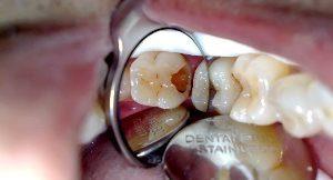 abrasi gigi