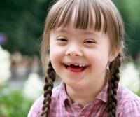 penyebab down syndrome