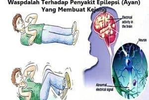penyebab-epilepsi-pada-orang-dewasa