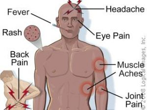 gejala demam berdarah