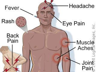 11 Gejala Demam Berdarah Dengue Awal
