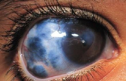 14 Gejala Glaukoma Akut dan Pada Anak