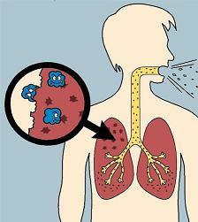 penyebab batuk