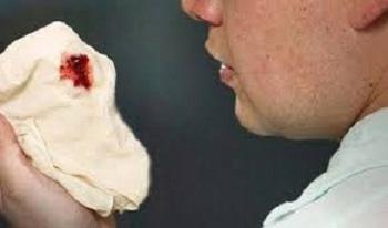 penyebab batuk berdarah