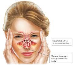 8 Gejala Sinusitis Akut dan Kronis