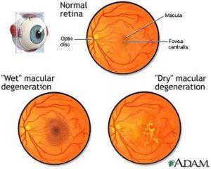 14 Jenis – Jenis Penyakit Mata : Gejala, Penyebab, dan ...