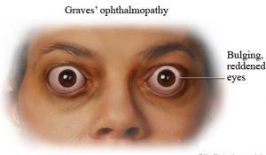 Penyakit Graves