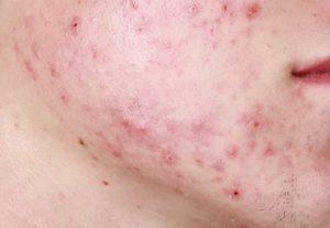 jenis penyakit kulit - Jerawat