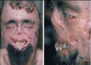 jenis penyakit kulit - Porfiria