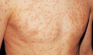 jenis penyakit kulit - Rubeola (Measles)