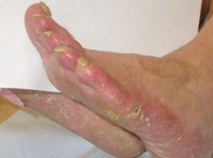 jenis penyakit kulit - Tinea Pedis