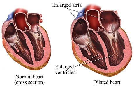 24 Cara Menyembuhkan Jantung Bengkak Secara Alami dan Cepat