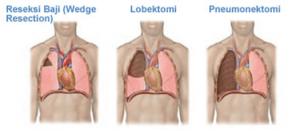 Pneumonektomi