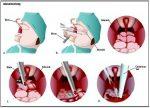 Adenoidektomi