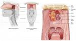 Laringektomi