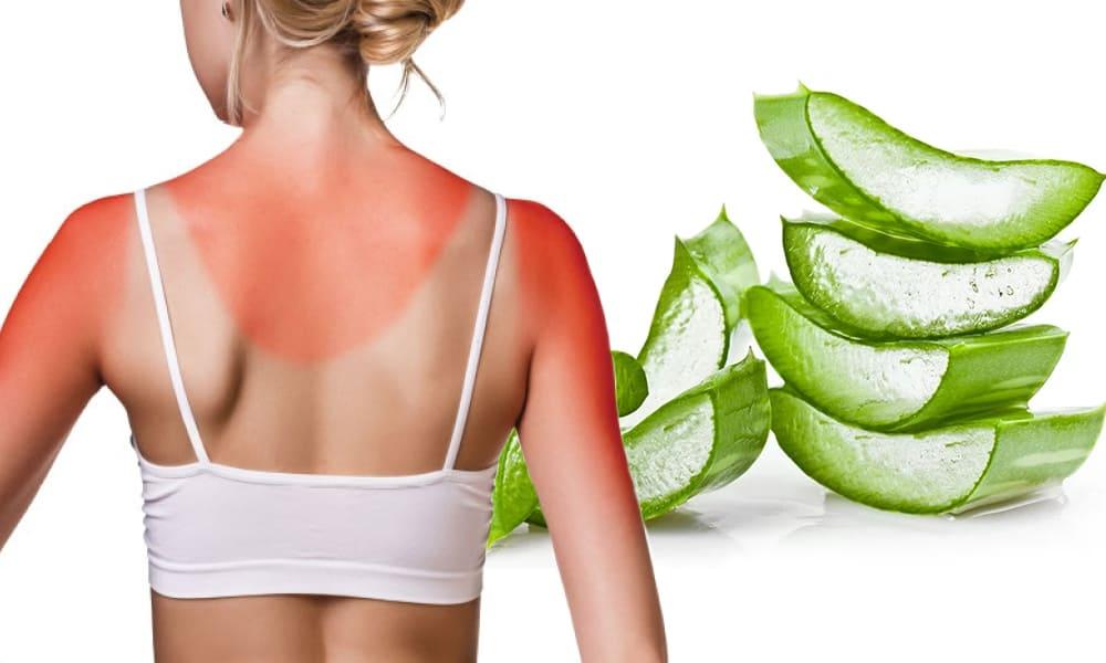 Kulit Terbakar Matahari, Aloe Vera Bisa Atasi Dengan 9 Cara Ini