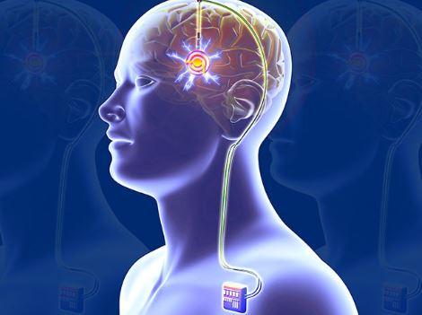 Uji Implan di Otak, Tim Peneliti di China Ini Ingin Obati Pasien Narkoba