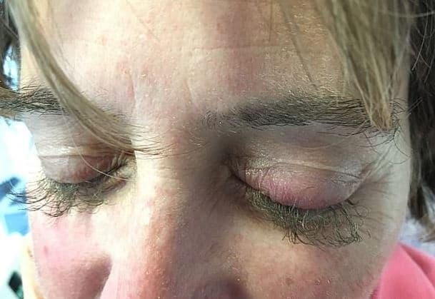 Wanita Ini Jadi Punya Bulu Mata Cantik Nan Lentik Usai Jalani Kemoterapi