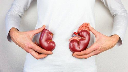 5 Cara Menjaga Kesehatan Ginjal Tanpa Harus Minum Obat