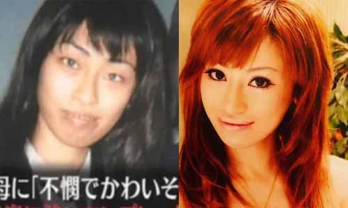 Wanita Jepang Ini Operasi Ratusan Kali Karena Sang Ibu Tak Menyukai Penampilannya