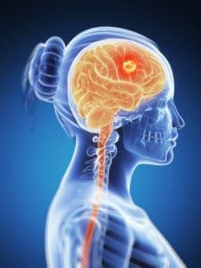 Kenali 5 Penyebab Kanker Otak Seperti yang Dialami Agung Hercules