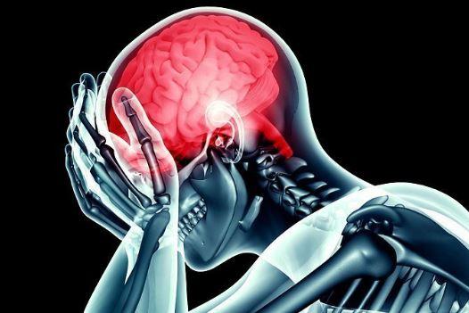 Guru Pekerja Keras Ini Tiba-tiba Kena Stroke Usai Mengeluh Sering Sakit Kepala
