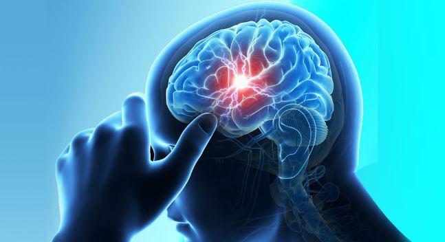 Terdapat 'Lubang Hitam' di Otak, Pria 60 Tahun Ini Hidup dengan Setengah Otak