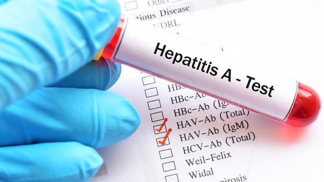 5 Gejala Hepatitis A yang Menyerang Warga Pacitan, Jawa Timur