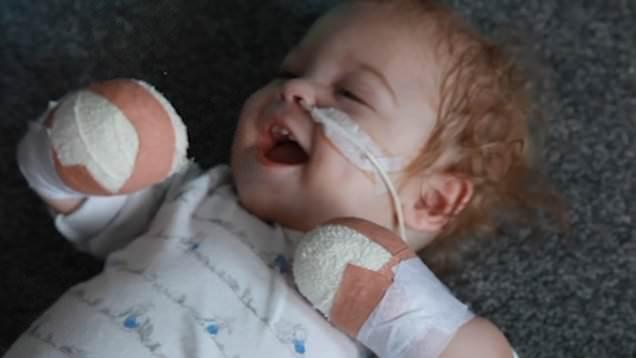 Bayi 11 Bulan Harus Kehilangan Kaki dan Tangan Akibat Sepsis, Apa Itu Sepsis?