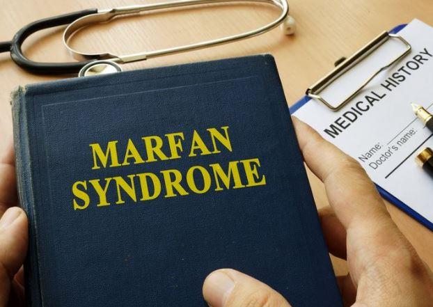 Kenali Sindrom Marfan, Penyakit yang Bikin Gadis Asal Pati Ini Tidak Punya Teman
