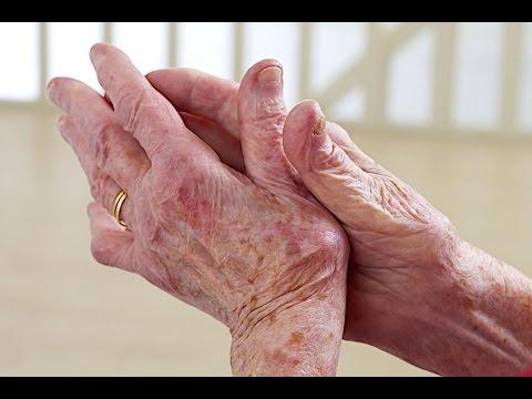 Penyakit Lupus Menular