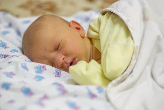 Penyebab Penyakit Kuning pada Bayi