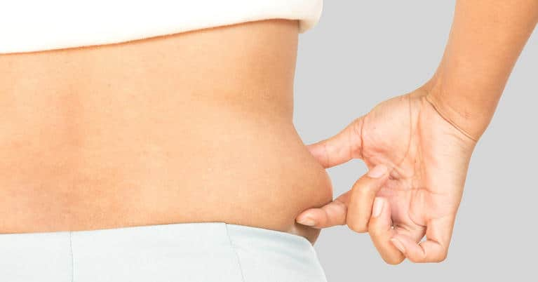 Bahaya Liposuction