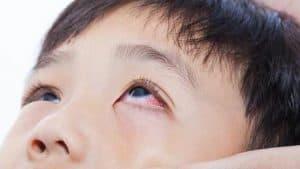 Penyakit Mata yang Disebabkan Oleh Bakteri