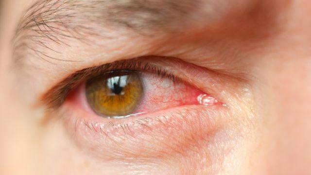 Penyakit Mata Merah