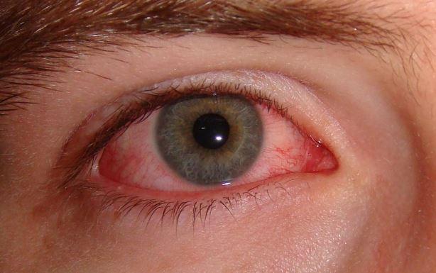 Bahaya Abu Rokok Kena Mata