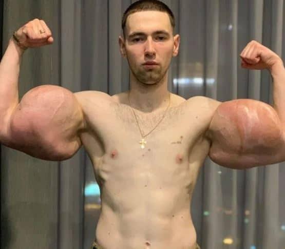 Nekat Perbesar Otot Lengan Agar Seperti Popeye, Nyawa Pria Ini Terancam