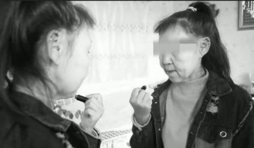Remaja Ini Menua Lebih Cepat Karena Sindrom Hutchinson Gilford Progeria, Apa Itu?